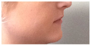 Juvederm Ultra Galleries Before & After Image