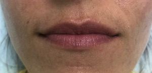 Juvederm Volbella Galleries Before & After Image